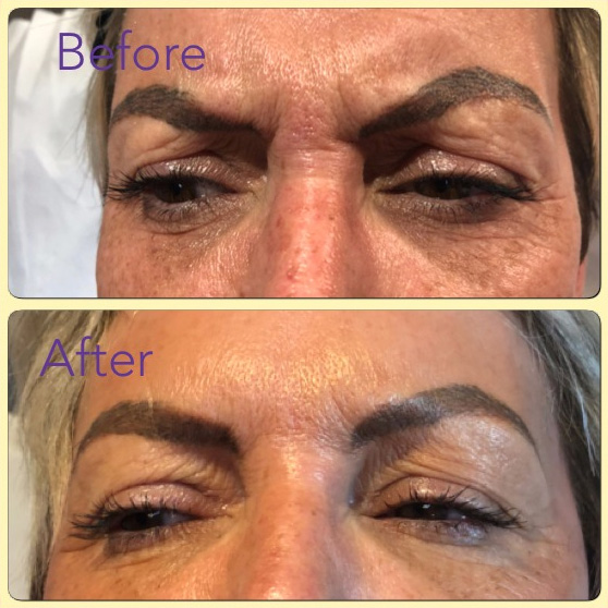Essenziale Beauty Room - Gallery - Aesthetics - Botox 1