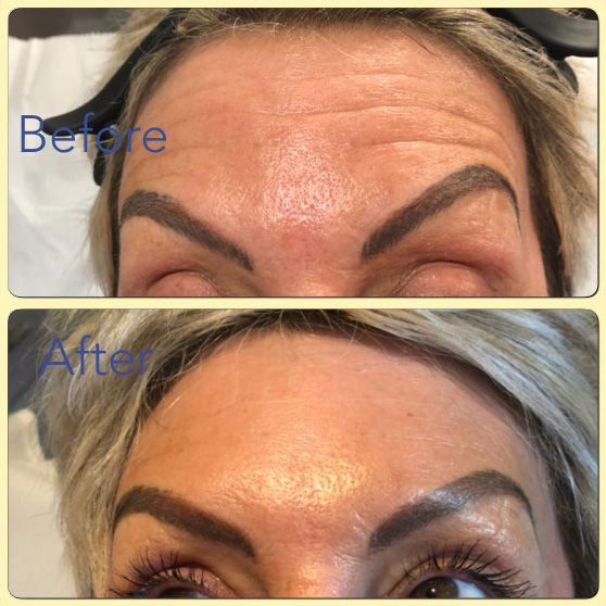 Essenziale Beauty Room - Gallery - Aesthetics - Botox 2
