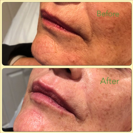Essenziale Beauty Room - Gallery - Aesthetics - Dermal Fillers 2