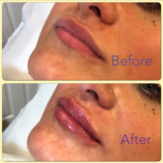 Essenziale Beauty Room - Gallery - Aesthetics - Dermal Fillers 4