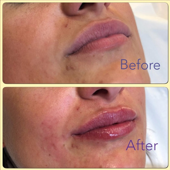 Essenziale Beauty Room - Gallery - Aesthetics - Dermal Fillers 5
