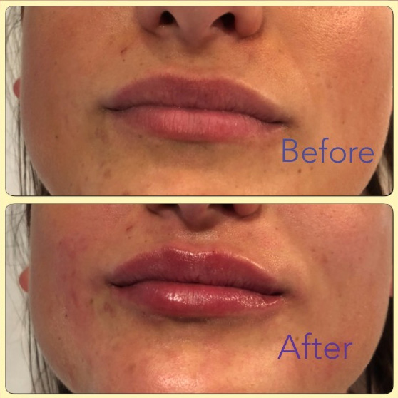 Essenziale Beauty Room - Gallery - Aesthetics - Dermal Fillers 6
