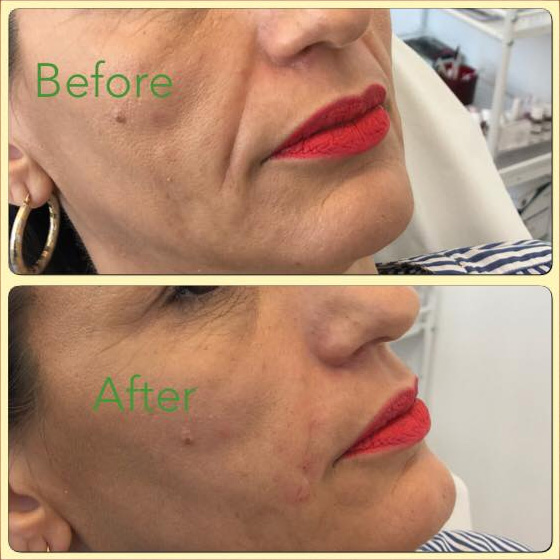 Essenziale Beauty Room - Gallery - Aesthetics - Dermal Fillers 8